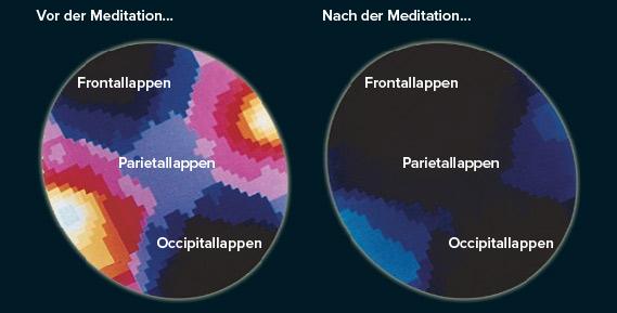Einfluss von Meditation auf das menschliche Hirn